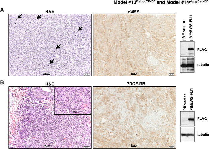 Histopathological analysis of tumors from Model #13