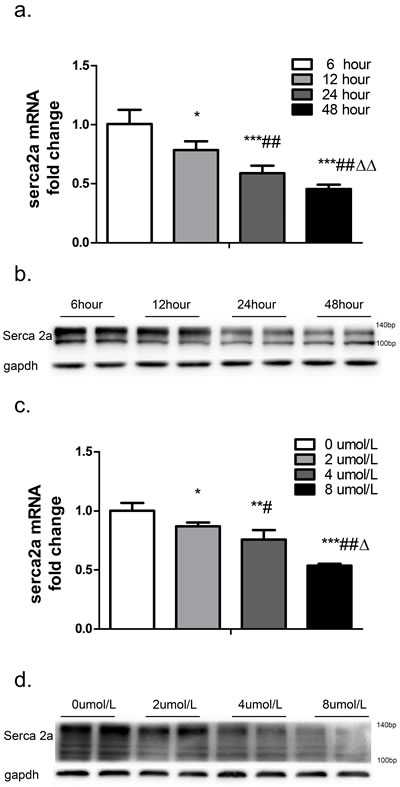 SERCA2a expression after treatment with different concentrations of TSH for different periods of time was measured in cardiomyocytes.