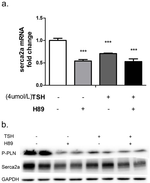 NRCMs were treated with 4 μM TSH and 20 μM H89 for 24 hours.