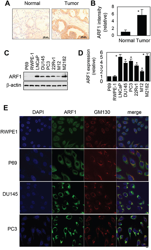 Elevated expression of ARF1 in prostate cancer cells and tumor tissues.
