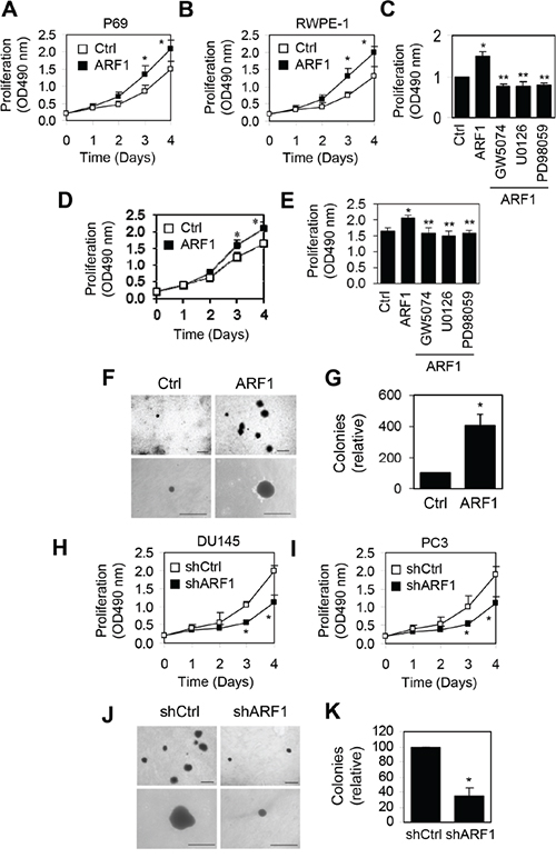Effect of manipulating ARF1 expression on prostate cancer cell proliferation and anchorage-independent growth.