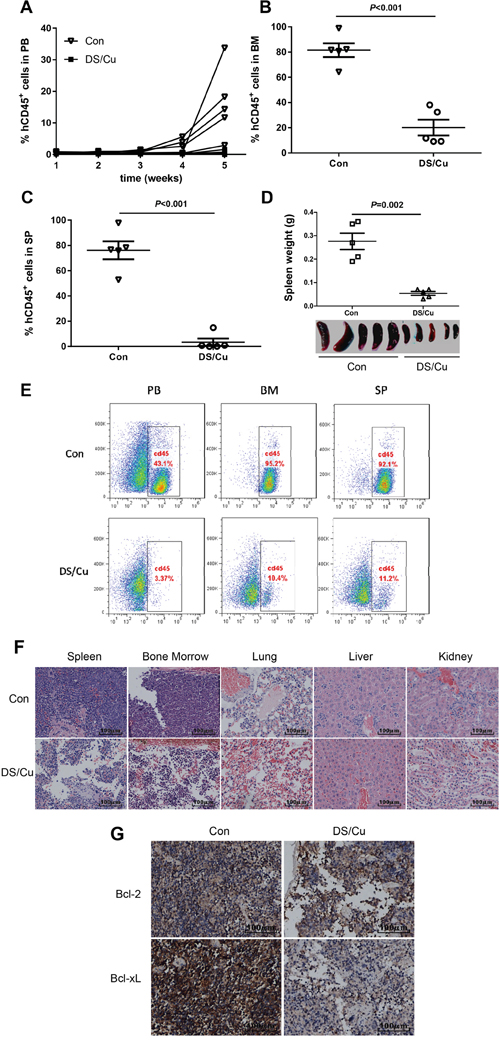 DS/Cu is active in vivo in patient-derived xenograft model of adult B-ALL.