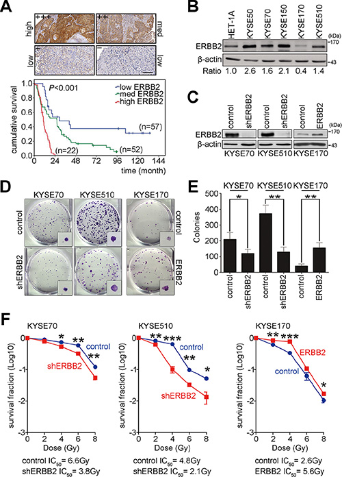ERBB2 overexpression enhances tumorigenesis and radiation resistance to cause poor prognosis in ESCC.