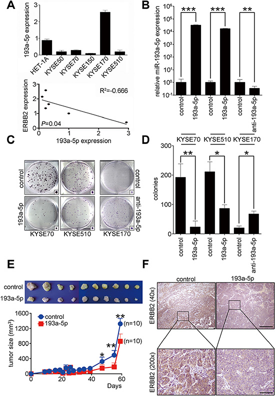 Up-regulation of miR-193a-5p decreases ERBB2 expression level to suppress ESCC tumorigenesis in vitro and in vivo.