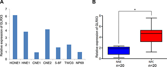 mRNA level of GLRX3 in nasopharyngeal carcinoma (NPC) and normal nasopharyngeal epithelia (NNE).