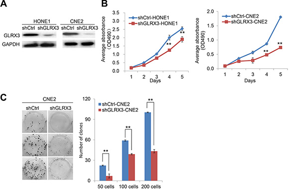 Knockdown of GLRX3 suppresses the growth of NPC cell line
