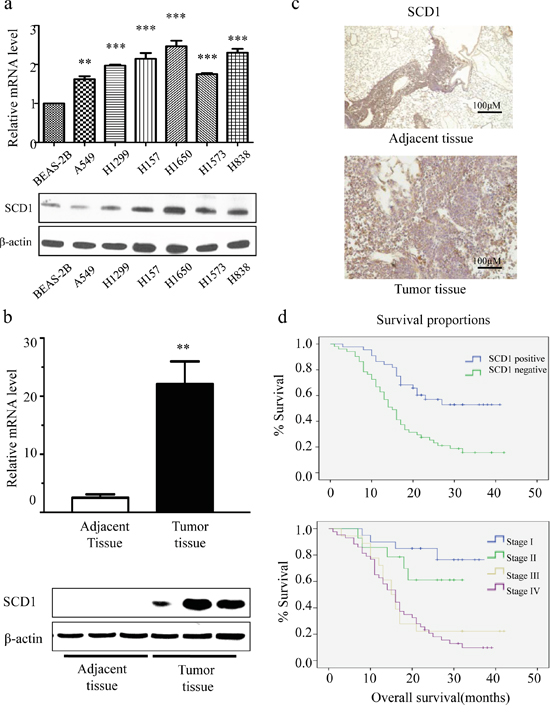 SCD1 is highly expressed in lung adenocarcinoma cells and is associated with patient survival time.