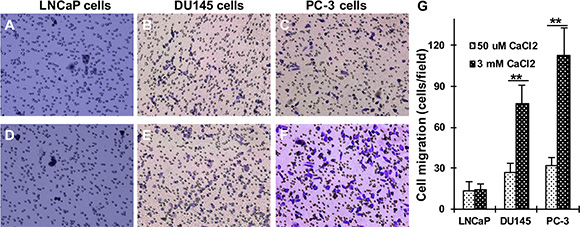 Effect of Cao2+ on the migration of LNCaP, DU145 and PC-3 cells.