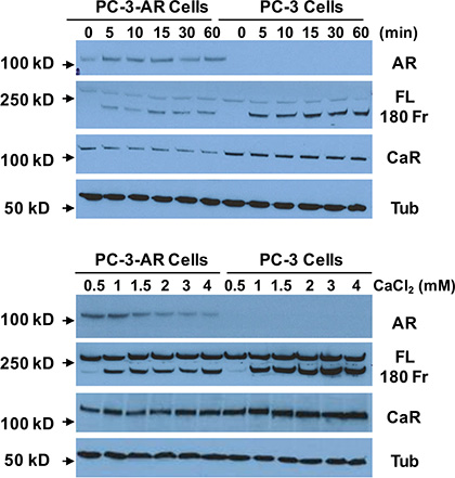 Effect of AR-expression on Cao2+-induced filamin A cleavage.