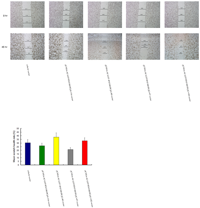 Cell-based scratch assay for MGC-803 cells transfected with various vectors.