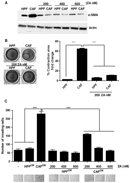 ZA administration reverts CAF activation and impairs their pro-invasive effects on cancer cells