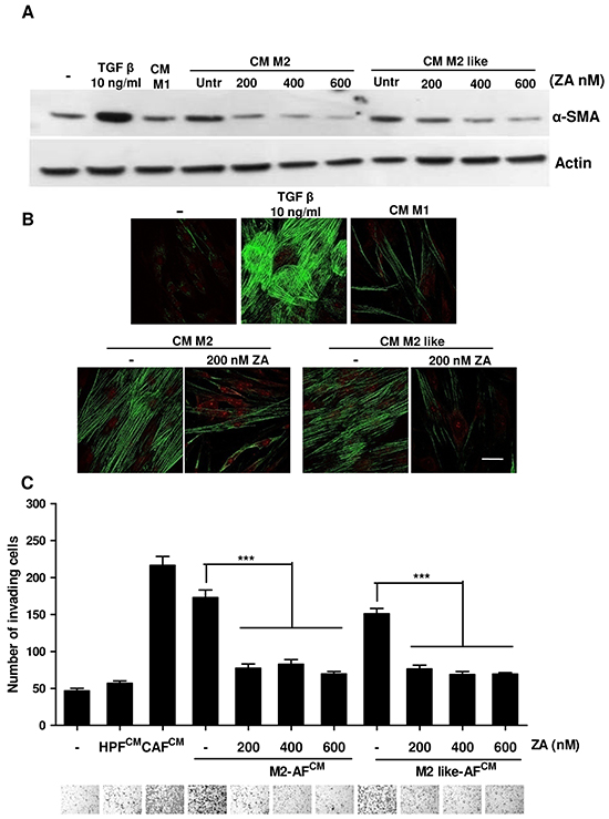 ZA counteracts macrophage-dependent fibroblasts activation.