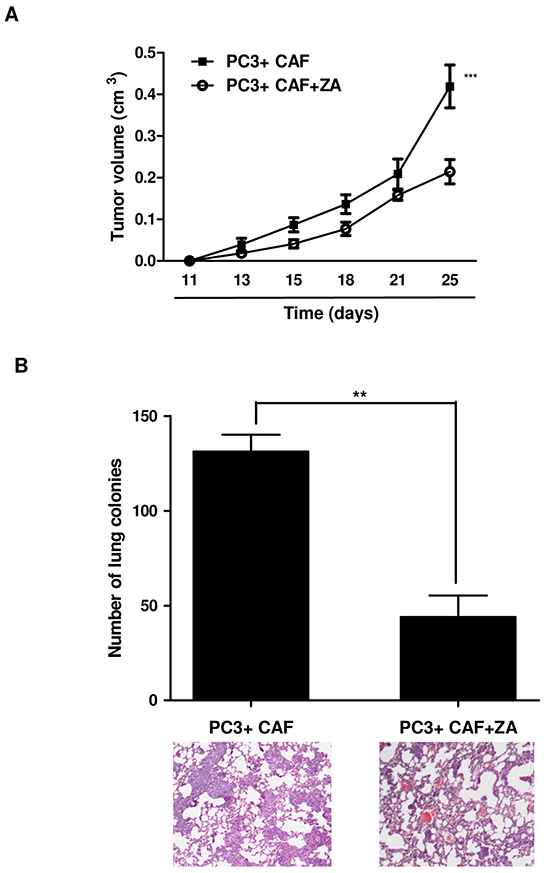 ZA in vivo administration prevents tumor growth and lung metastatic dissemination.