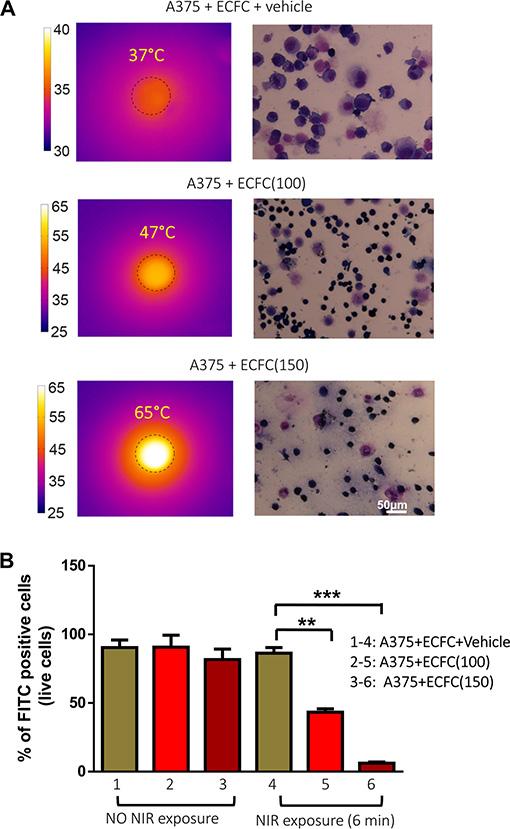 Photothermal effects of AuNPs on melanoma cells.