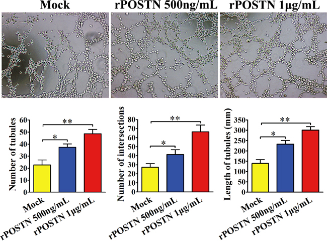 Effect of POSTN on tubule formation in vitro.