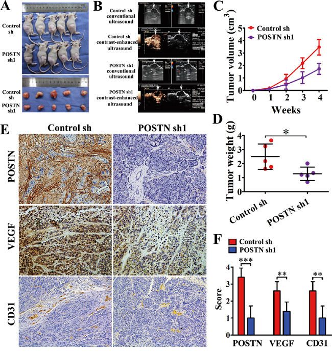 POSTN enhances the tumorigenicity and angiogenesis of pancreatic cancer cells in vivo.