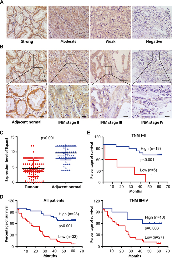 Tspan5 was downregulated in GC and correlated with clinicopathological features and patient overall survival.