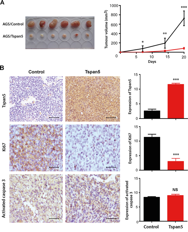Tspan5 suppressed tumour growth of GC in vivo.