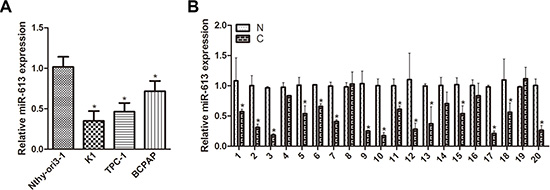 miR-613 is downregulated in PTC cell lines and patient specimens.