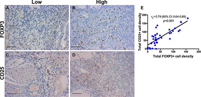 Immunohistochemistry for regulatory T-cells.