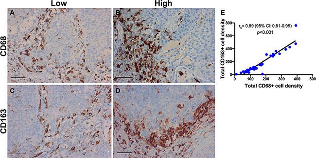 Immunohistochemistry for tumor-associated macrophages.