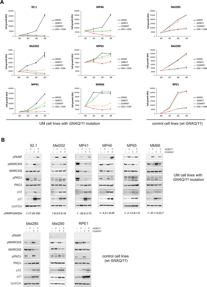 Co-inhibition of PKC and MDM2 induces cell death in the majority of UM cell lines.