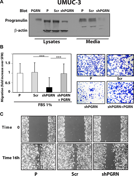 Progranulin depletion inhibits UMUC-3 urothelial cancer cell motility.
