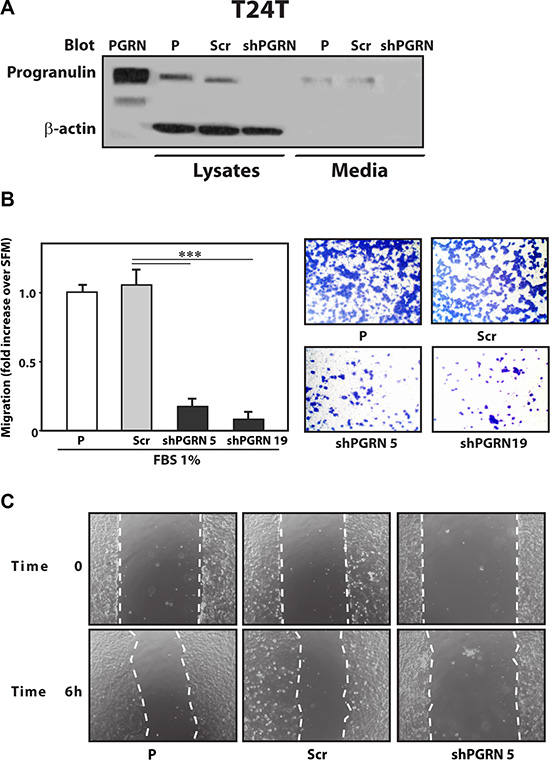 Progranulin depletion inhibits T24T urothelial cancer cell motility.