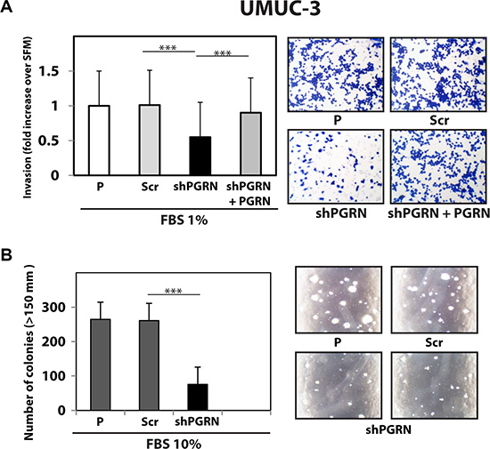 Progranulin targeting modulates invasion and anchorage-independent growth of UMUC-3 urothelial cancer cells.