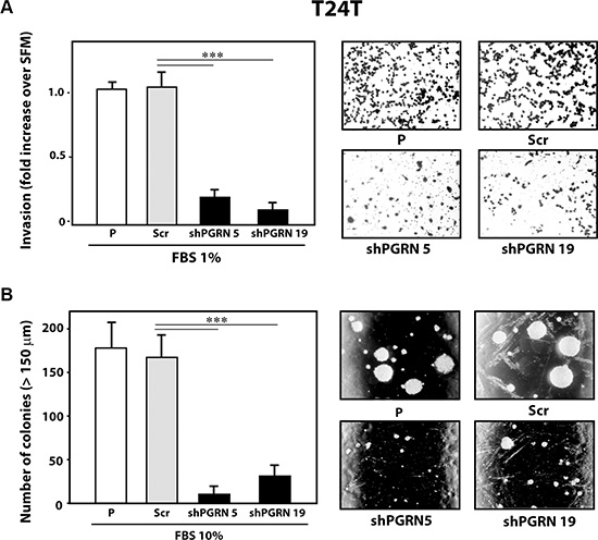 Progranulin targeting modulates invasion and anchorage-independent growth of T24T urothelial cancer cells.