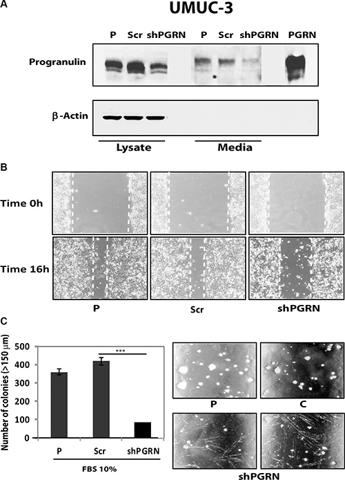 Progranulin depletion inhibits UMUC-3 urothelial cancer cell motility and anchorage-independent growth.