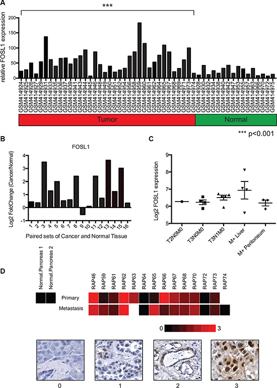 FOSL1 is overexpressed in pancreatic ductal adenocarcinoma samples.