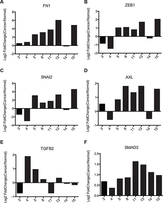 Pancreatic cancer samples exhibit similar FRA1:EMT signature as colorectal cancer cells.