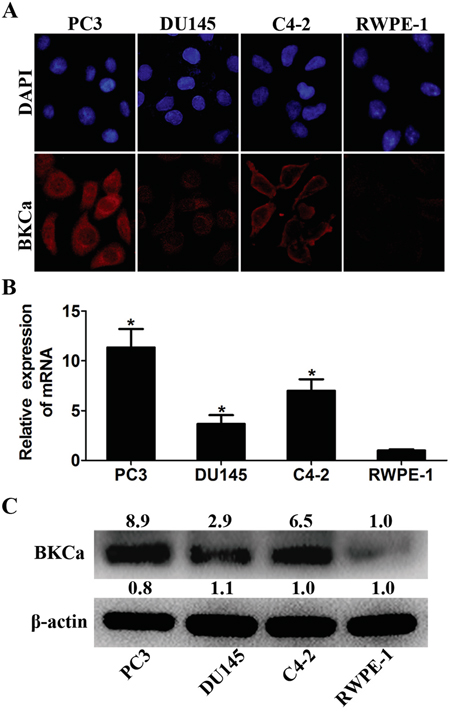 Expression analysis of BKCa in prostate cell lines.