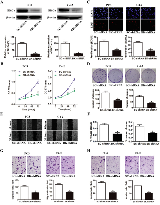 Downregulation of BKCa inhibits prostate cancer cell proliferation, migration and invasion.