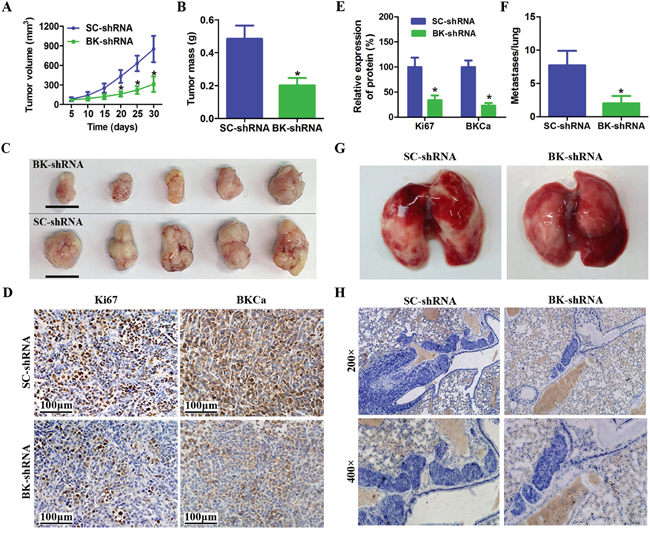 Downregulation of BKCa inhibits prostate cancer growth and metastasis in vivo.