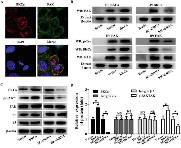 Modulation of FAK phosphorylation in PC3 cells by BKCa/αvβ3 complex.