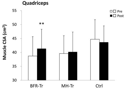 Muscle cross-sectional area (CSA) of quadriceps pre- and post-training period.