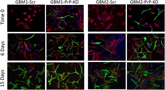 Immunofluorescence analysis of GFAP expression (green) at time 0, after 6 and 15 days of differentiation in medium containing 10% FBS.