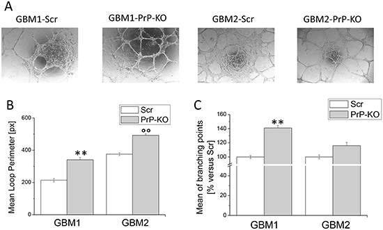 Effect of PrPC down-regulation on the ability of GBM CSCs to form endothelial tubes.