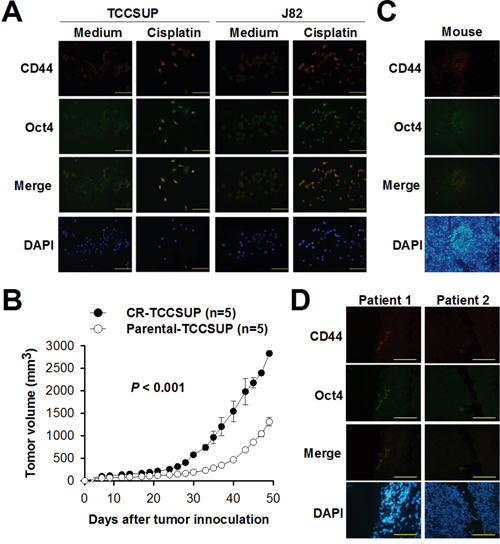 Treatment with cisplatin increases CD44-positive cells expressing Oct4 in bladder cancer.