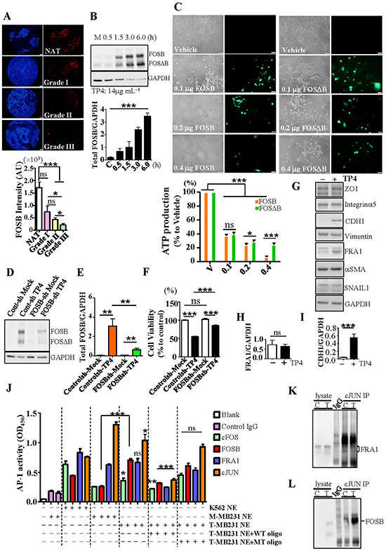 TP4 triggers TNBC cell death through FOSB induction.