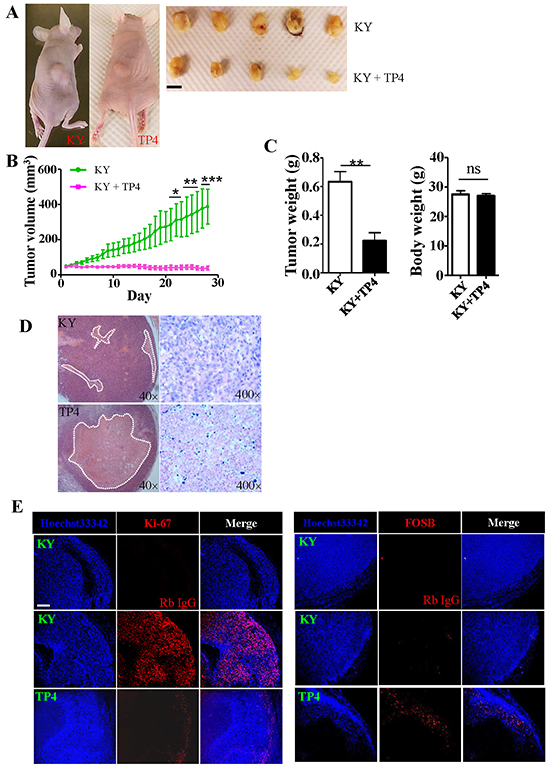 TP4 inhibits TNBC xenograft growth in nude mice.