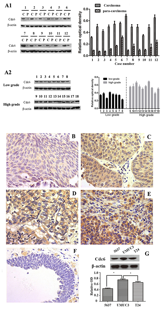Cdc6 is highly expressed in bladder cancer tissues and cell lines.