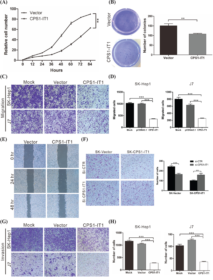CPS1-IT1 suppresses cell proliferation, migration and invasion in vitro.