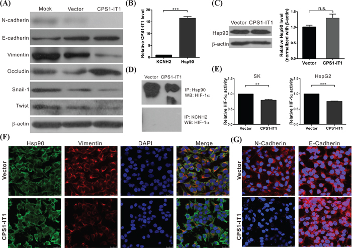 CPS1-IT1 associates with Hsp90 and inhibits the epithelial-mesenchymal transition.