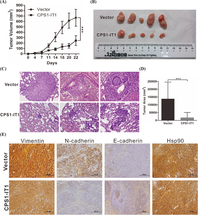 CPS1-IT1 reduces tumor growth and metastasis of HCC cells in vivo.