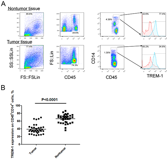 Level of TREM-1 on tumor tissue-infiltrating monocytes/macrophages from patients with NSCLC.