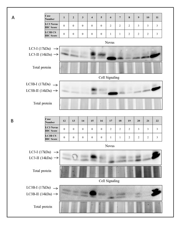 Immunoblot analysis of LC3 in protein extracts from FFPE tissue from 22 early-stage non-small cell lung carcinomas.