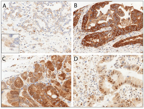 Immunohistochemical staining patterns of p62 in esophageal adenocarcinoma (EAC).